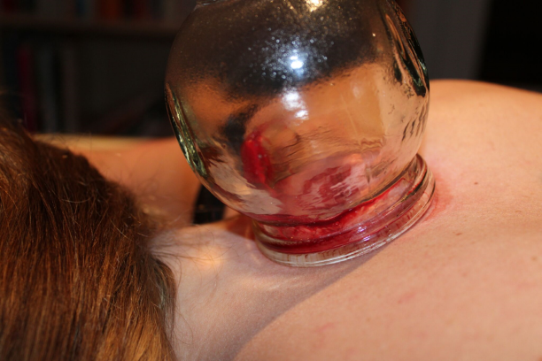 Cupping therapy close up